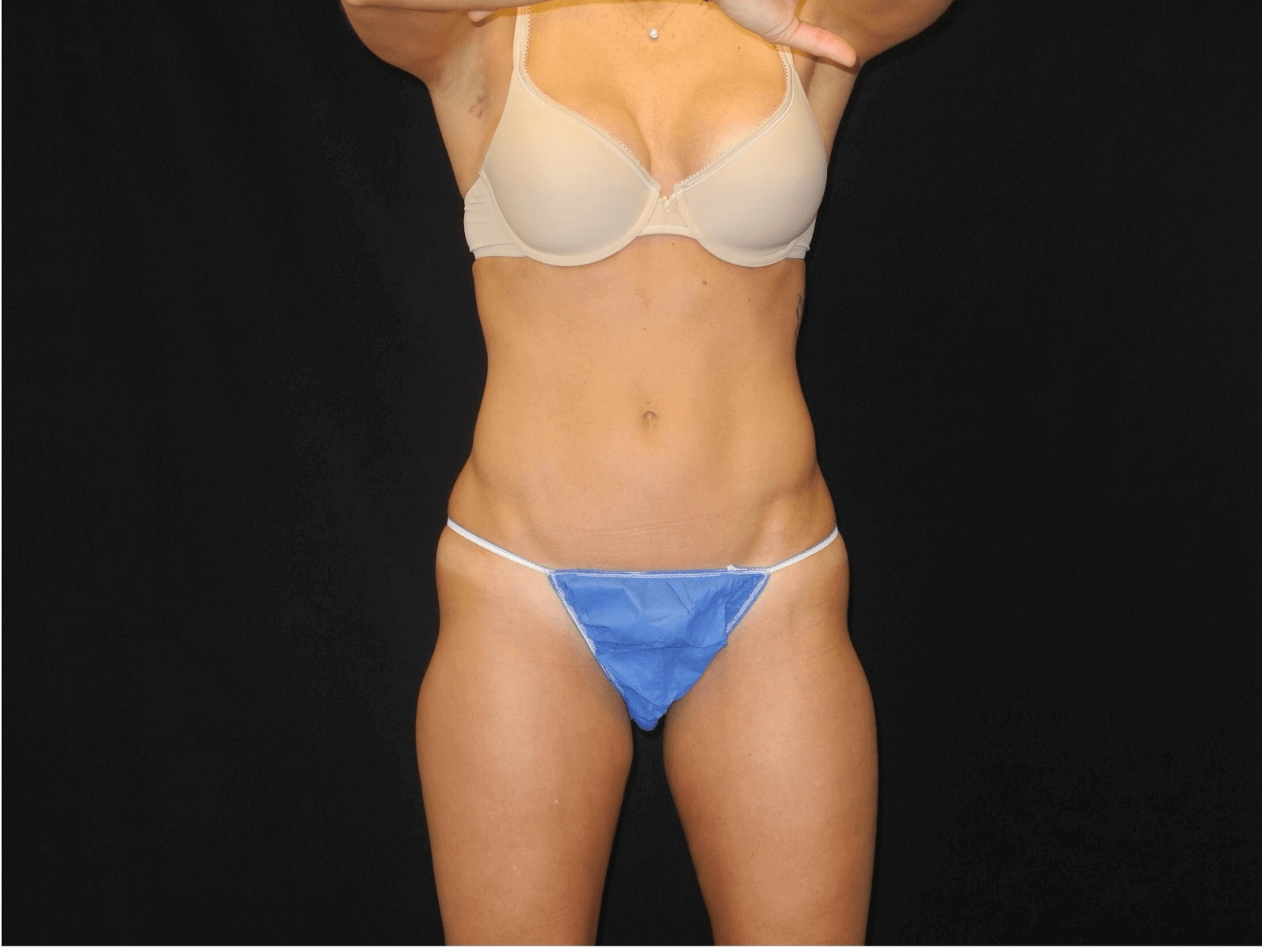 Coolsculpting of Outer Thigh Before