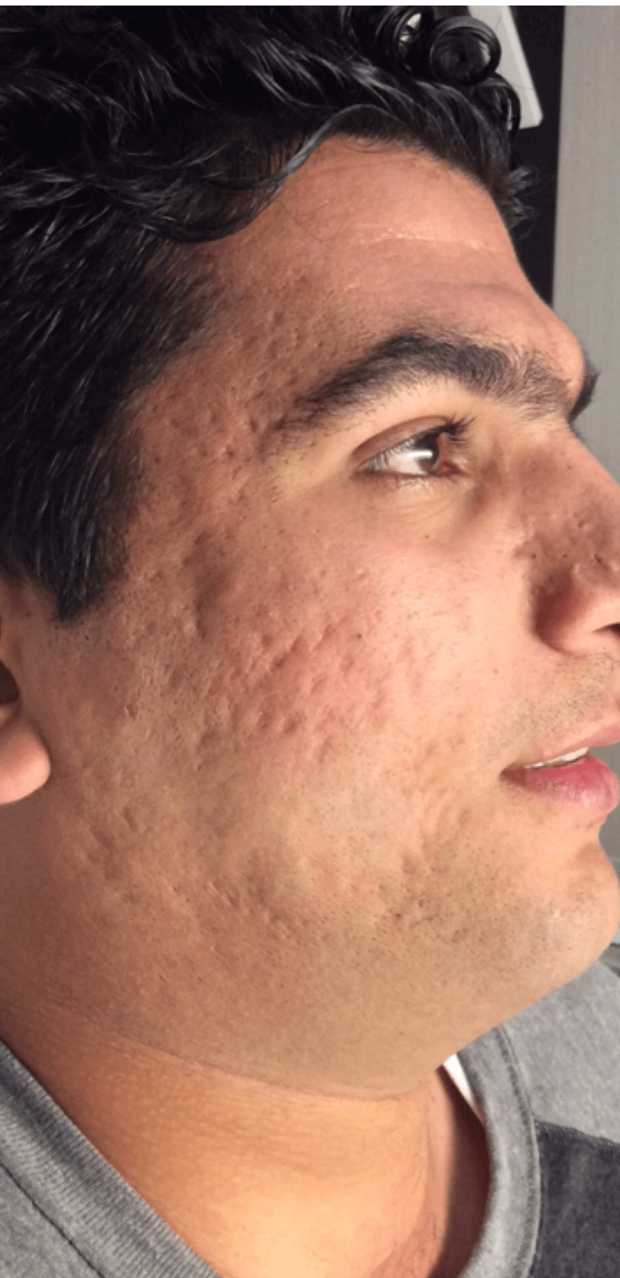 Treatment for Acne Scars Before