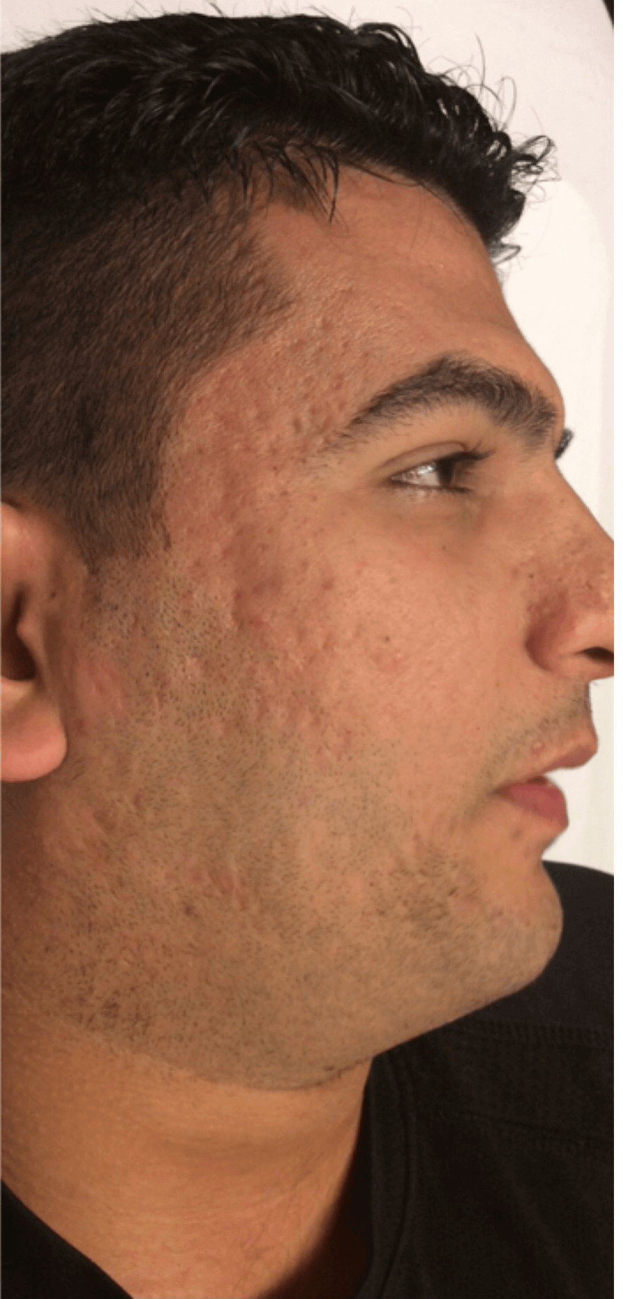Treatment for Acne Scars After