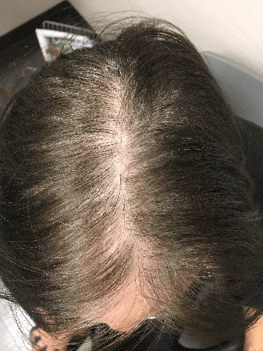 Reversal of Hair Loss Before
