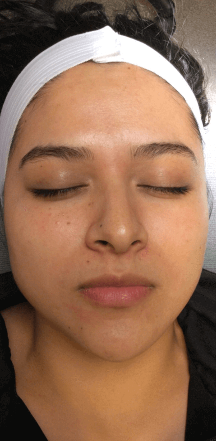 Hydrofacial Results Before