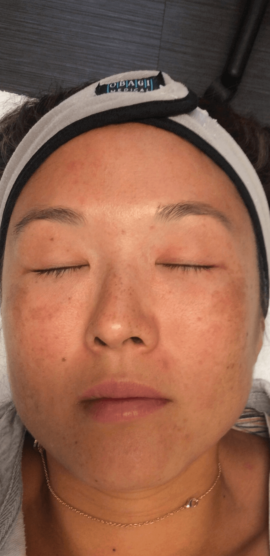 Dermapen Before and After Before