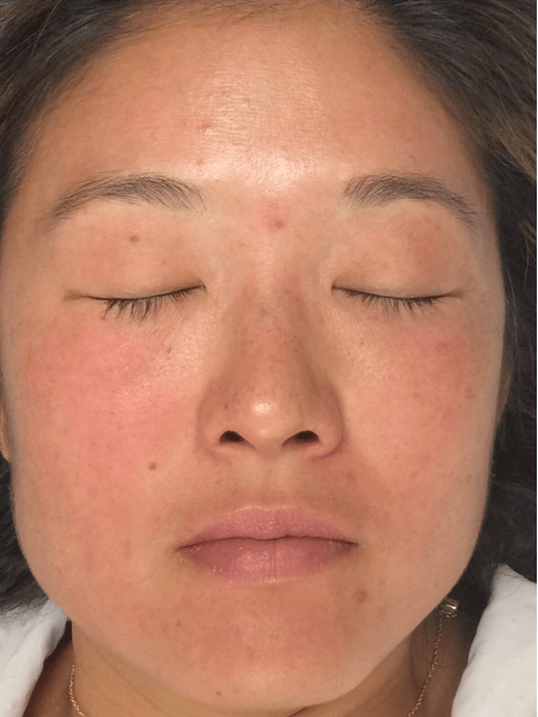Dermapen Before and After After