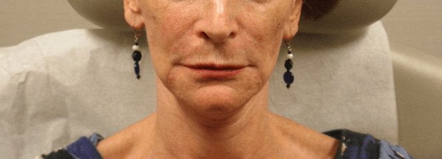 Restylane Before and After After