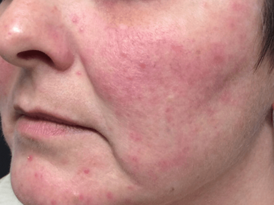 Rosacea Treatment Before
