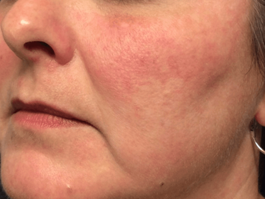 Rosacea Treatment After