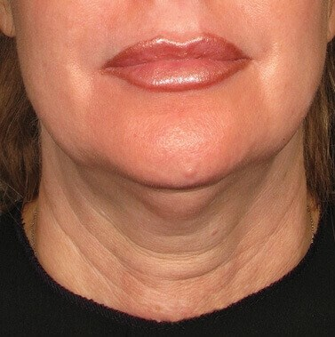 Neck Treated With Ultherapy Before