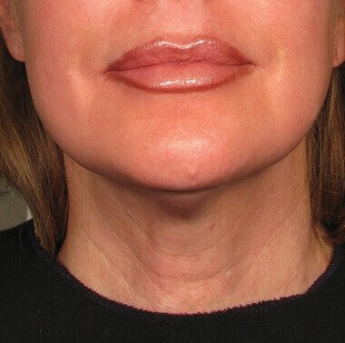 Neck Treated With Ultherapy After