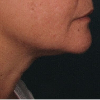 Ultherapy Under Chin After