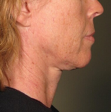 Ultherapy Under Chin Before