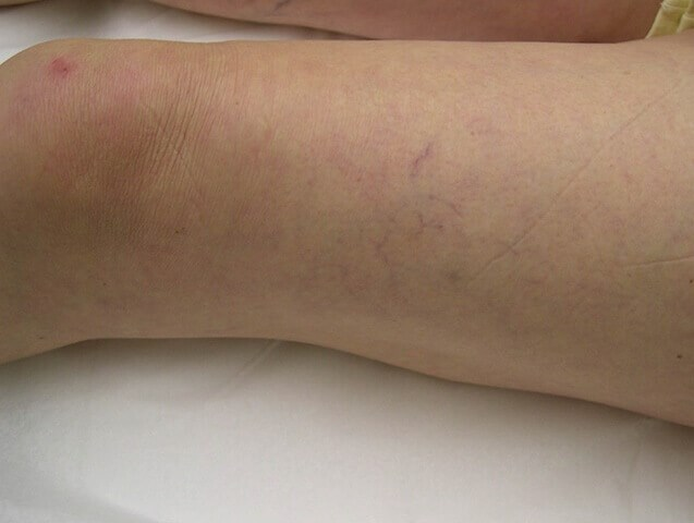 Leg Vein Treatment Before