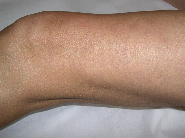 Leg Vein Treatment After