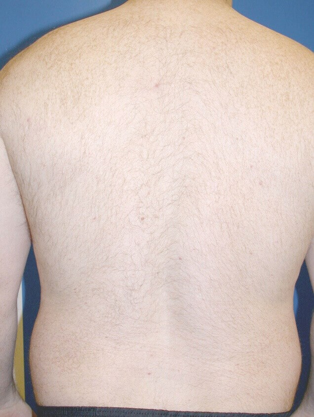 Before and After Hair Removal After