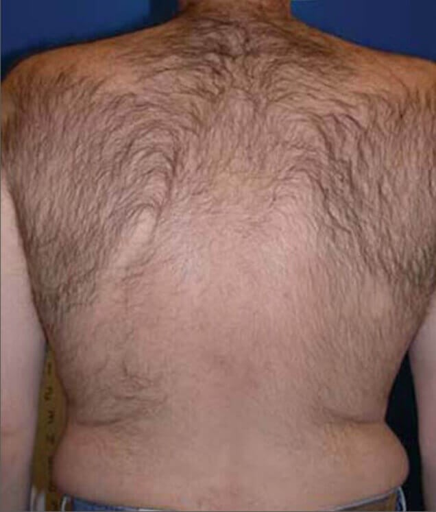 Before and After Hair Removal Before