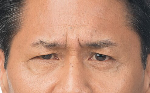 Frown Lines After Botox Before