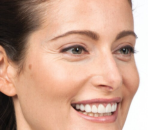 Smile Lines After Botox Before