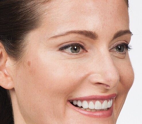 Smile Lines After Botox After