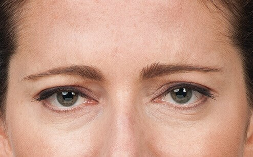 Frown Lines After Botox After