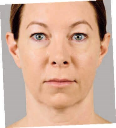 Juvederm Before & After- Front After