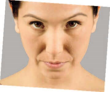 Juvederm Befoer & After Before