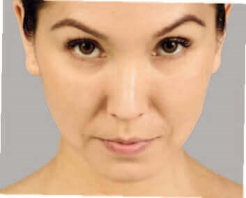 Juvederm Befoer & After After