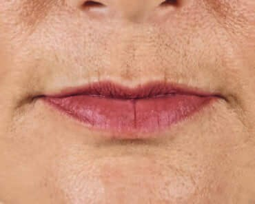 Juvederm Before & After- Lips Before