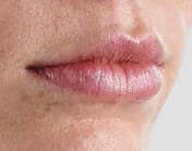 Juvederm Before & After- Lips After