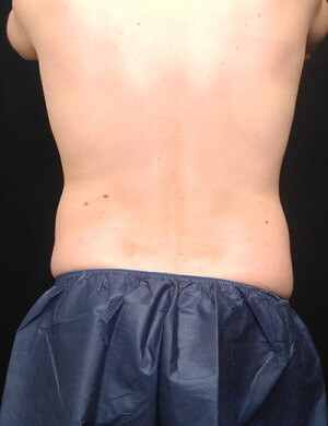 Coolsculpting- Flanks Before