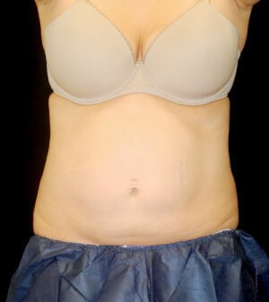 Coolsculpting- Abdomen After