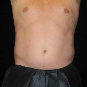 Coolsculpting Before & After Before