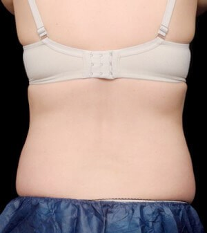 Coolsculpting- Flanks After