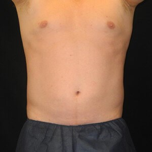 Coolsculpting Before & After After