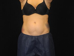 Coolsculpting- Front View Before