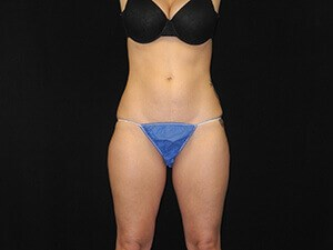 Coolsculpting- Front View After