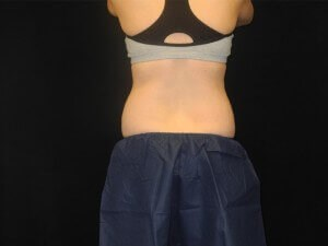 Coolsculpting- Back View Before