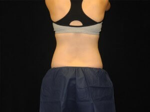 Coolsculpting- Back View After