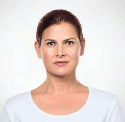 Kybella Before & After Photos After